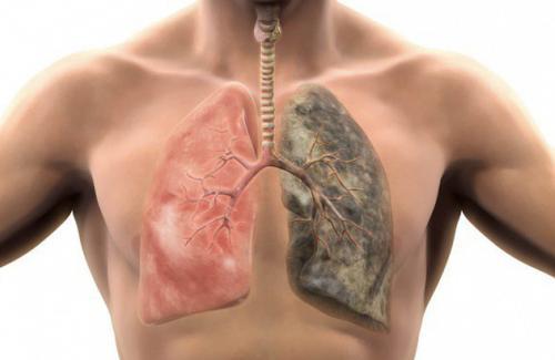 Dẫn lưu tư thế, vỗ, rung - Những biện pháp trong điều trị bệnh phổi